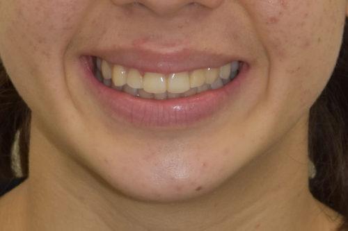 smile-post