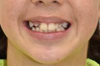 smile-pre